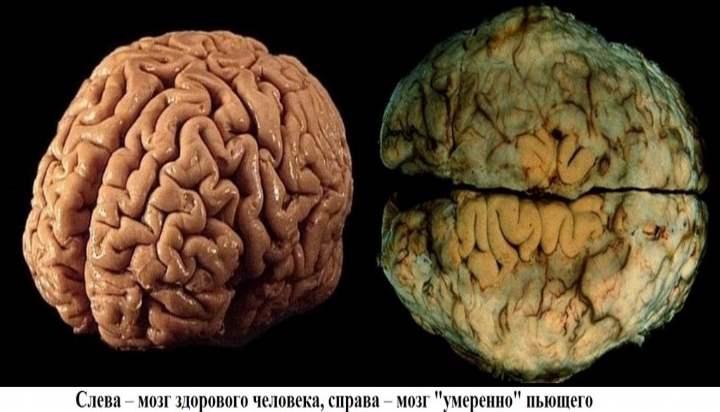 Алкоголь напрямую влияет на процессы памяти