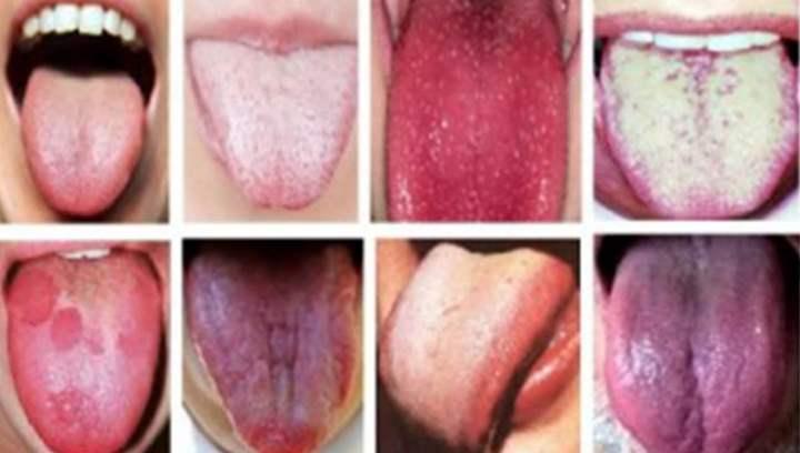 8 поражений языка