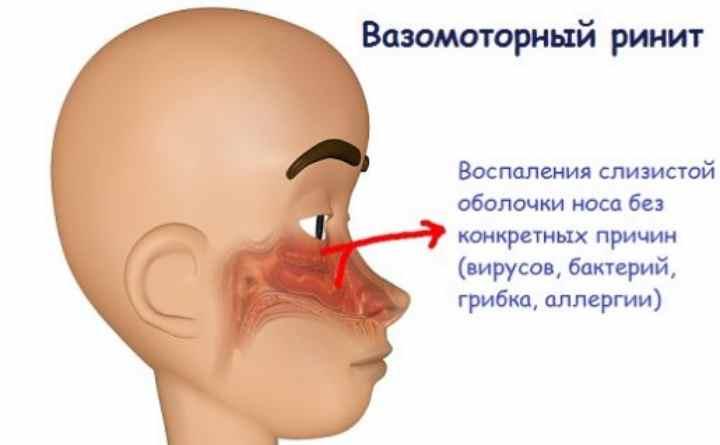 проявляется водянистыми выделениями из носа