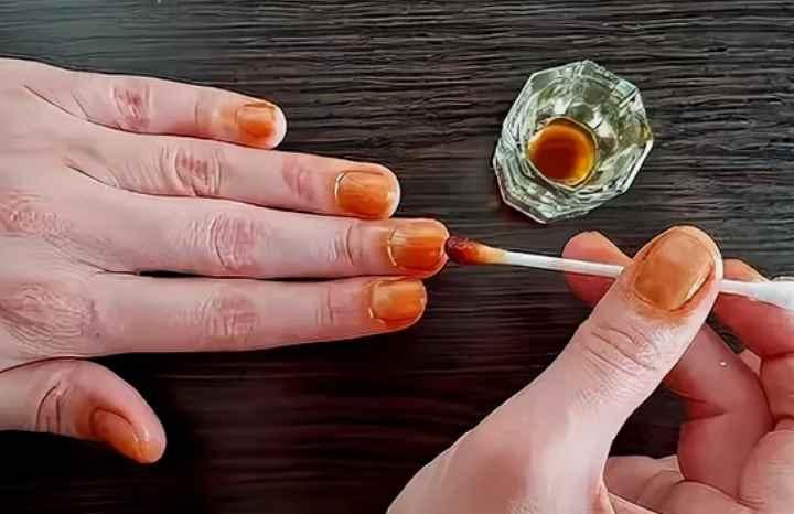 Йод важен для организма человека, для здоровья, поэтому микроэлементы йода помогут и в укреплении ногтей.