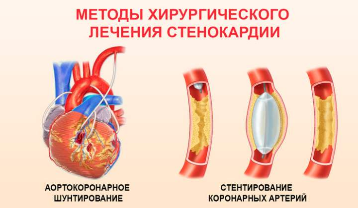 Отказаться от табакокурения