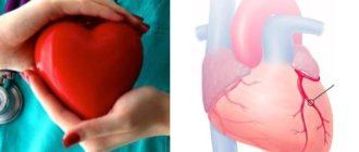 Из-за чего появляется стенокардия и как можно её предотвратить