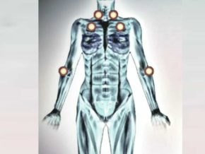 Человеческое тело и болевые точки